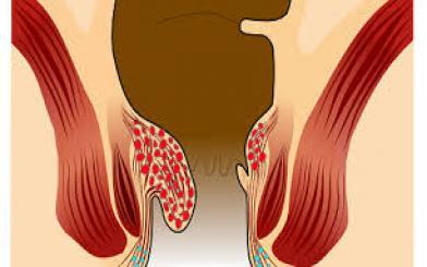 Cách chữa bệnh trĩ nội độ 1 1