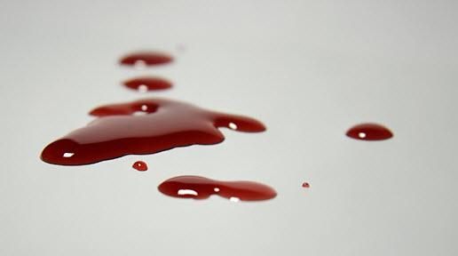 Đi ngoài ra máu có nguy hiểm không? 1