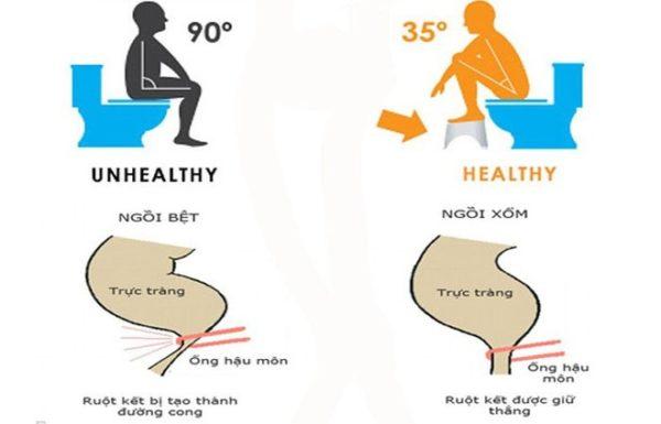 5. Ngồi xổm khi đi vệ sinh 1