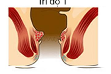 Cách chữa bệnh trĩ nội độ 1
