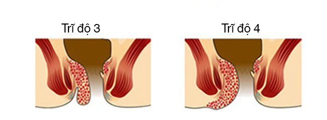 Bệnh trĩ nội độ 3 - giai đoạn phát triển nhanh nhất của trĩ nội. 1