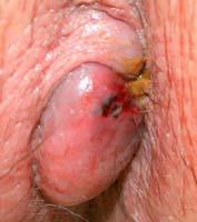 Hình ảnh sa búi trĩ ngoại chảy máu 1