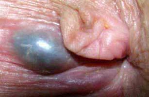 Hình ảnh sa búi trĩ ngoại huyết khối 1