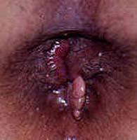 Phân biệt bệnh trĩ ngoại và mẫu da thừa 1