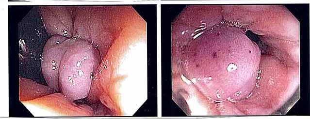 Bệnh trĩ nội độ 2 1