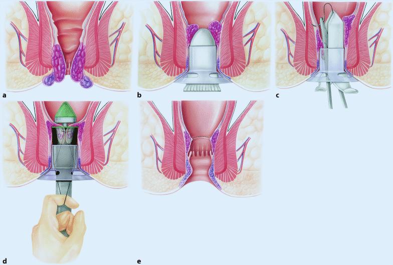 Can thiệp ngoại khoa chữa bệnh trĩ nặng 1