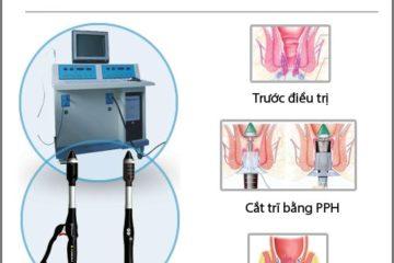 Các phương pháp phẫu thuật cắt trĩ phổ biến nhất hiện nay