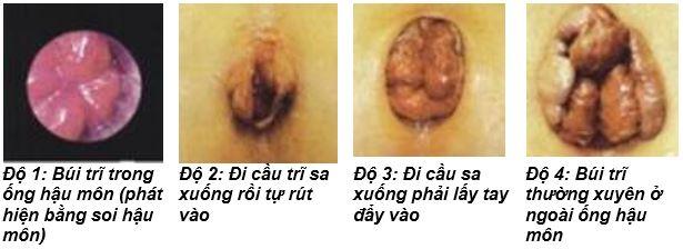 Dấu hiệu bệnh trĩ nội cấp độ 3 1