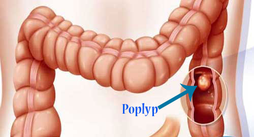 4. Bệnh polyp hậu môn 1