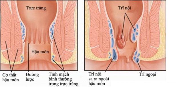 Các giai đoạn phát triển của bệnh trĩ nội 1