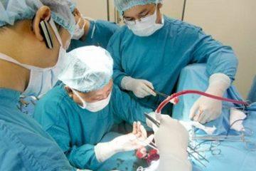 Làm gì khi bệnh trĩ tái phát sau phẫu thuật