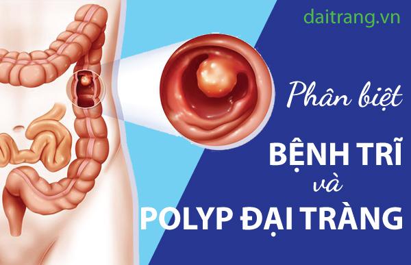 SỐC: Chảy máu polyp đại tràng lại nhầm tưởng là bệnh trĩ 1